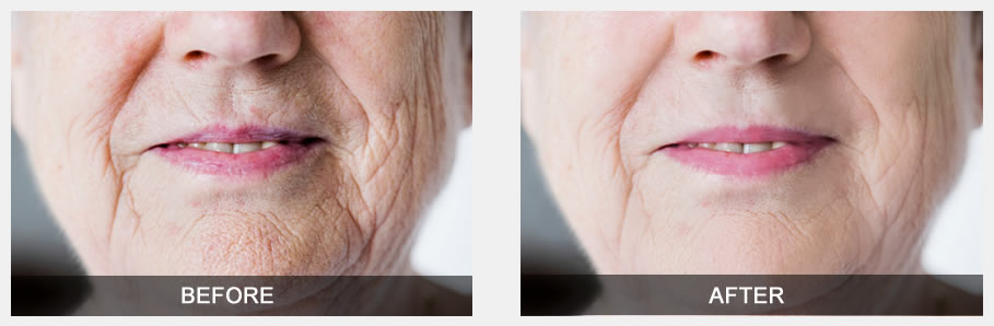 'Before' photo of old woman with a lot wrinkles, and 'After' photo of the same woman with less wrinkles.